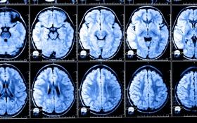 Обои X-rays, brain, studies