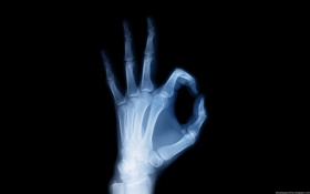 Обои Рентген, кости, скелет, рука
