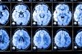 Картинка X-rays, brain, studies